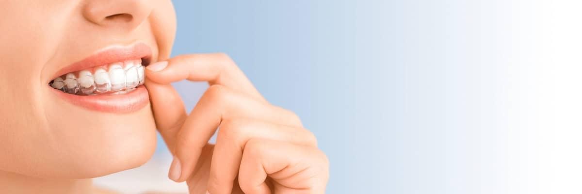 MDS in Orthodontics