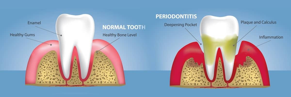 MDS in Periodontics